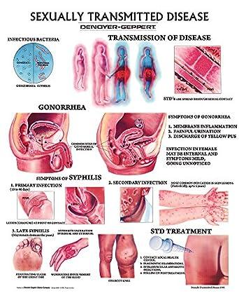 sexually transmitted disease wall chart unmounted amazon