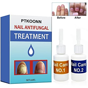 tratamiento eficaz para hongos en los pies