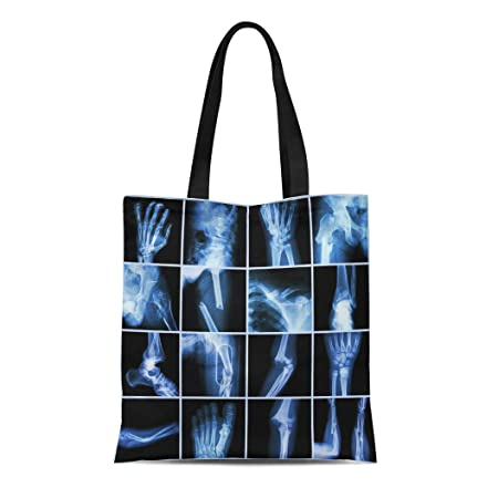 83b8053bb023 Amazon.com: Semtomn Cotton Canvas Tote Bag Collection X Ray Multiple ...
