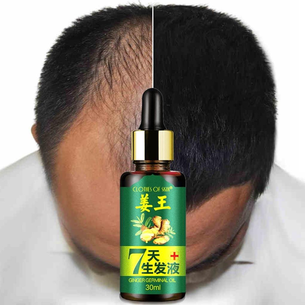 Alopecia Tratamiento de pérdida de cabello, suero para el crecimiento del cabello, líquido de suero, esencia para el crecimiento rápido del cabello, ...