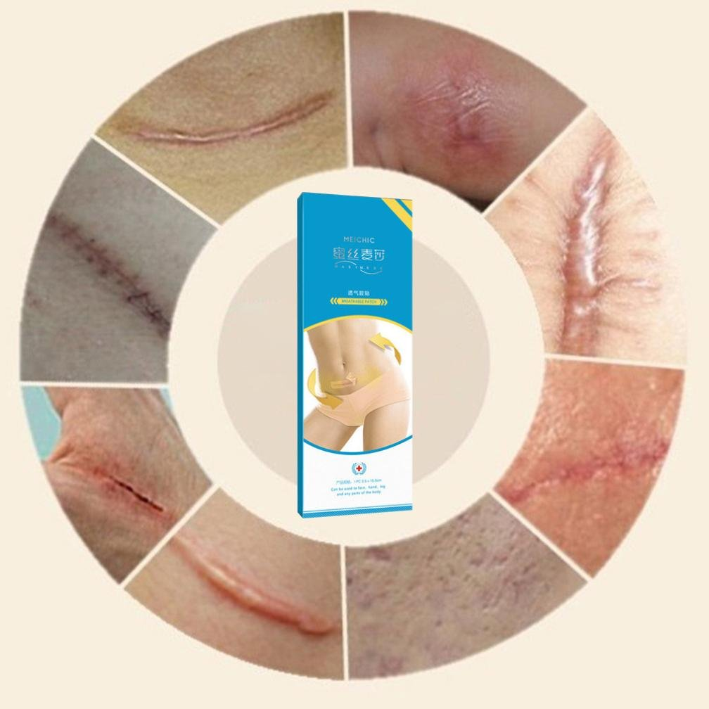 XiongBuy Removal Scars Patch Freckle Patch Extract Acne Treatment Facial (Blue) by XiongBuy (Image #6)