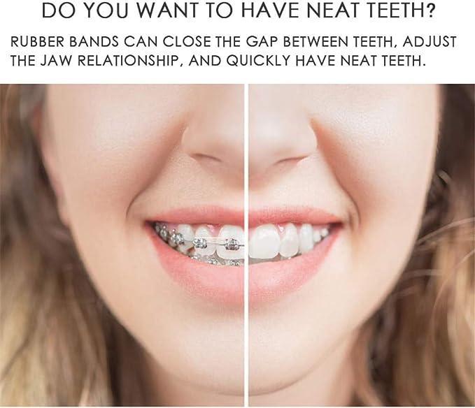 Orcbee 100pcs Dental Rubber Bands Orthodontic Elastics