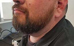 Best beard kit available