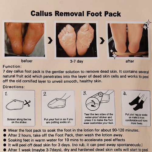 foot soak to remove dead skin