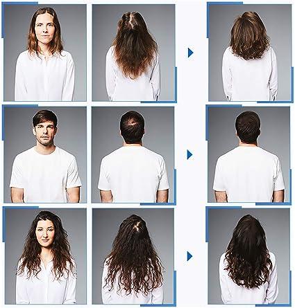 Kit de suero para el crecimiento del cabello con microagujas Derma ...