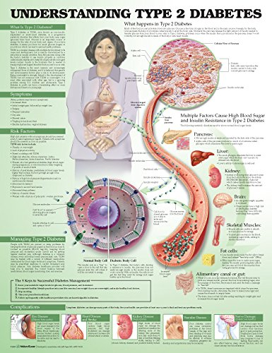 Understanding Type 2 Diabetes Anatomical Chart Jeff Unger Acc 9781469894980 Medical / Nursing ANF: Health and Wellbeing Clinical Medicine: Professional Endocrinology & Metabolism Family & General Practice General Adult MEDICAL / Endocrinology & Metabolism