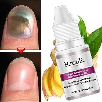Amazon.com: Yiwa Anti Fungal Nail Infection Toe Nail Fungus ...