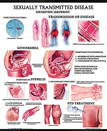 types of sexually transmitted disease