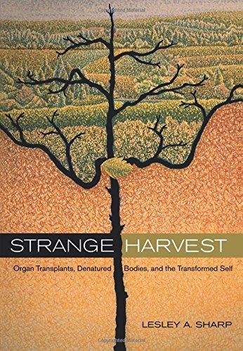 Strange Harvest: Organ Transplants, Denatured Bodies, and...