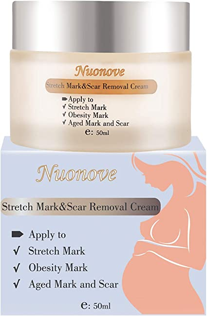 Stretch Mark Cream Stretch Mark Remover Stretch Mark Removal