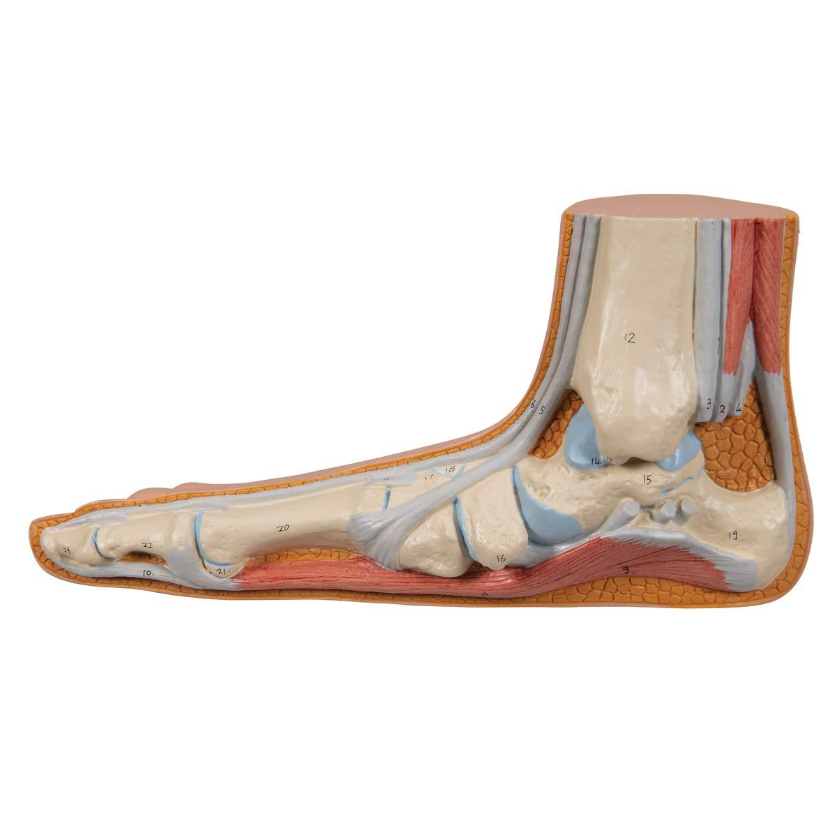 3B Scientific M31 Flat Foot (Pes Planus) Joint Model, 4.7'' x 9.4'' x 3.9''