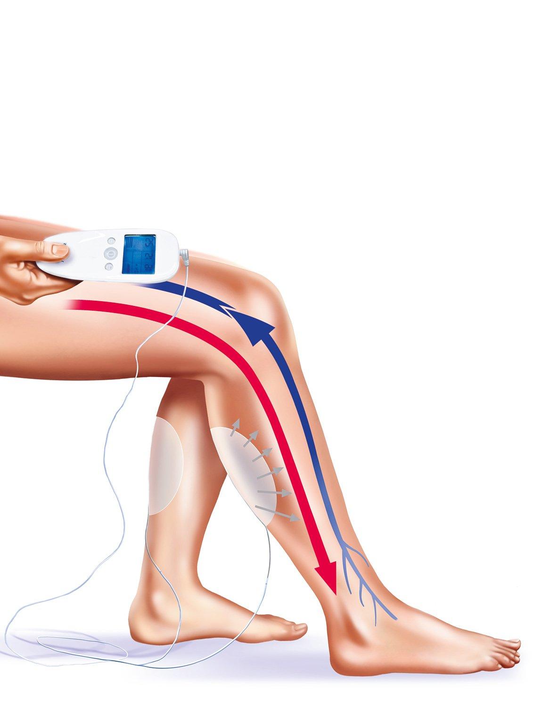 VeinoPlus - Set de 2 électrodes GLORIA MED SpA