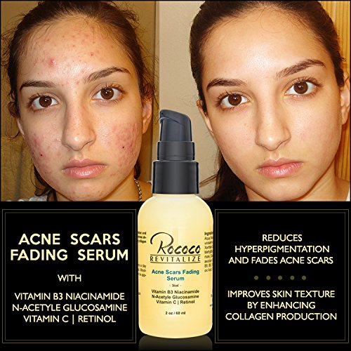 Amazon Com Acne Scar Removal Fading Treatment Retinol Serum