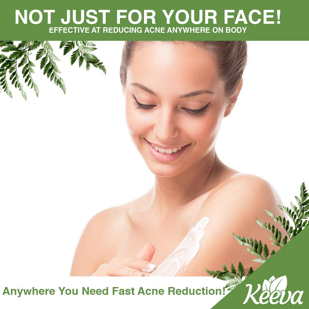 Acne Treatment Cream With Secret TEA TREE OIL Formula - Perfect For Acne Scar Removal, Fighting Breakouts, Spots, Cystic Acne - See Results in Days Without Dry Skin (2oz) by Keeva Organics (Image #1)