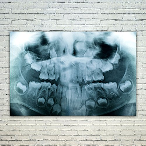 Westlake Art Radiography Dental - 12x18 Poster Print Wall Art - Modern Picture Photography Home Decor Office Birthday Gift - Unframed 12x18 Inch (Rays Crystal Mug)