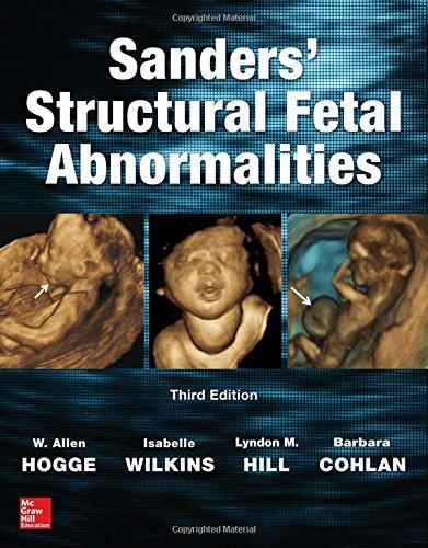 Best sanders structural fetal abnormalities to buy in 2019