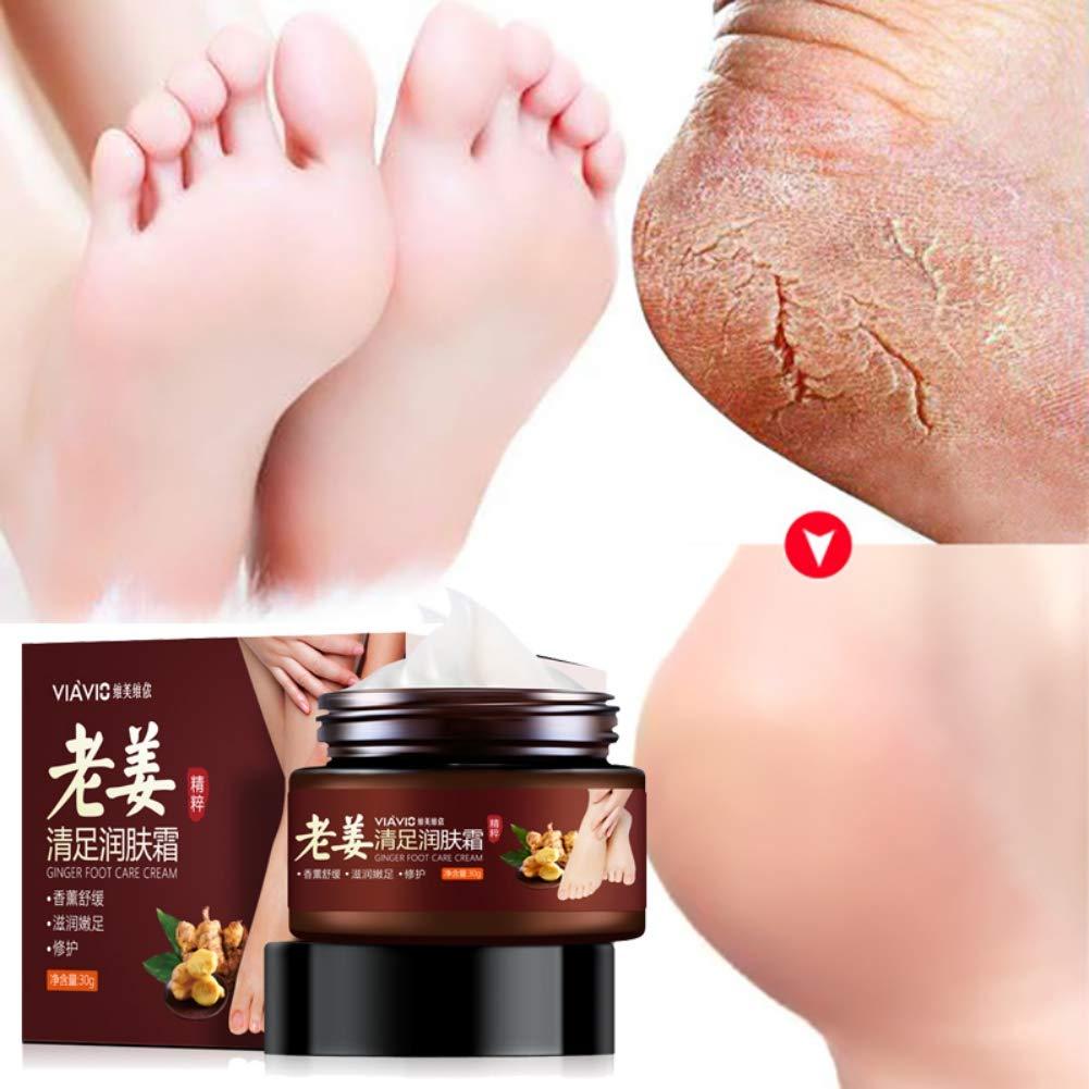 Symeas Crème pour les pieds Ginger Essence Anti-desséchant Crème essentielle pour les pieds pour la peau nourrissante
