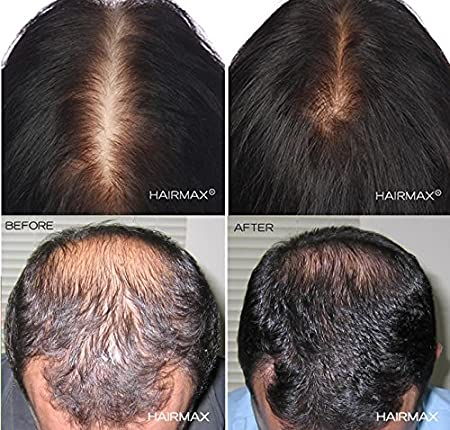 HairMax LaserBand 82 (FDA Cleared)  82 Medical Grade Lasers  Stimulate Hair  Growth, Reverse Thinning,
