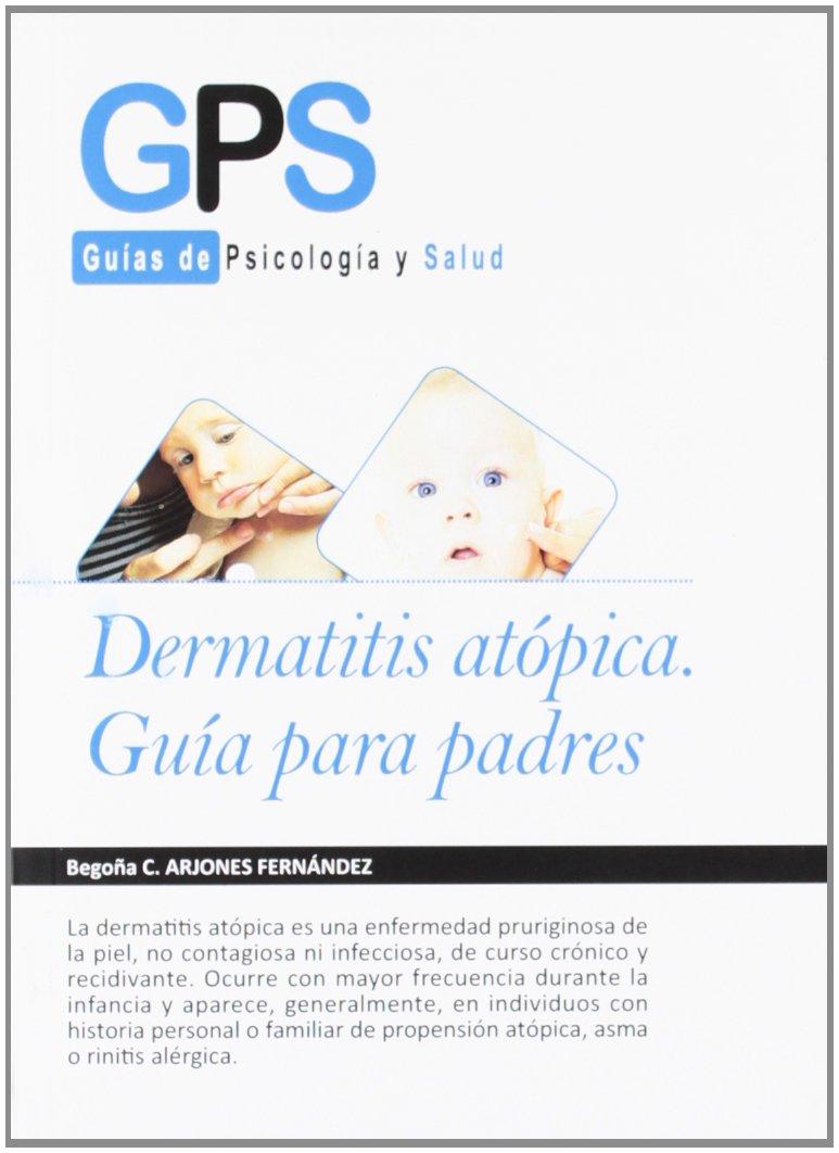 Dermatitis (Spanish Edition)