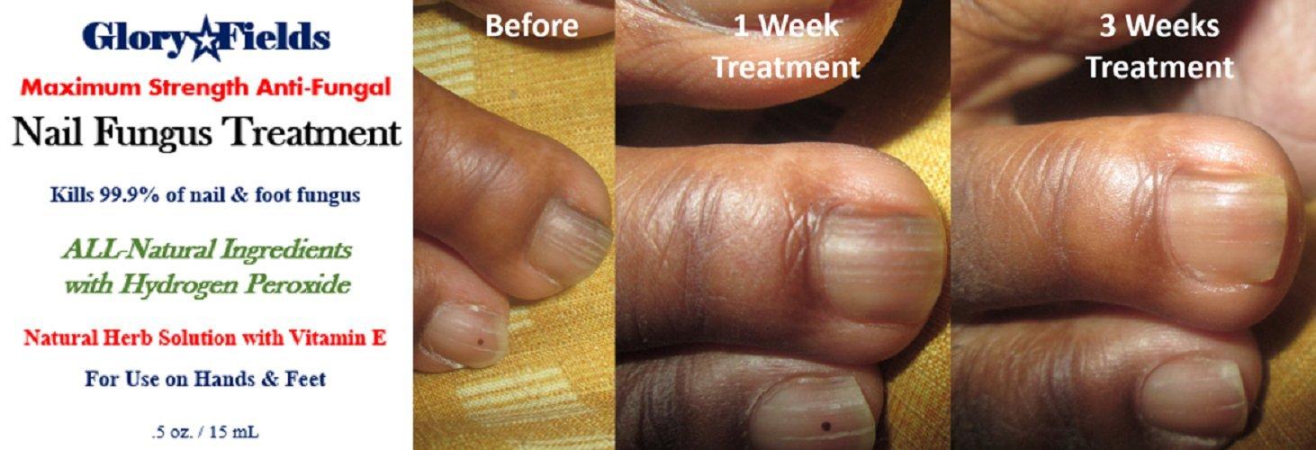 Amazon.com: Nail Fungus Treatment. Kill 99.9% of Nail Fungus. Anti ...