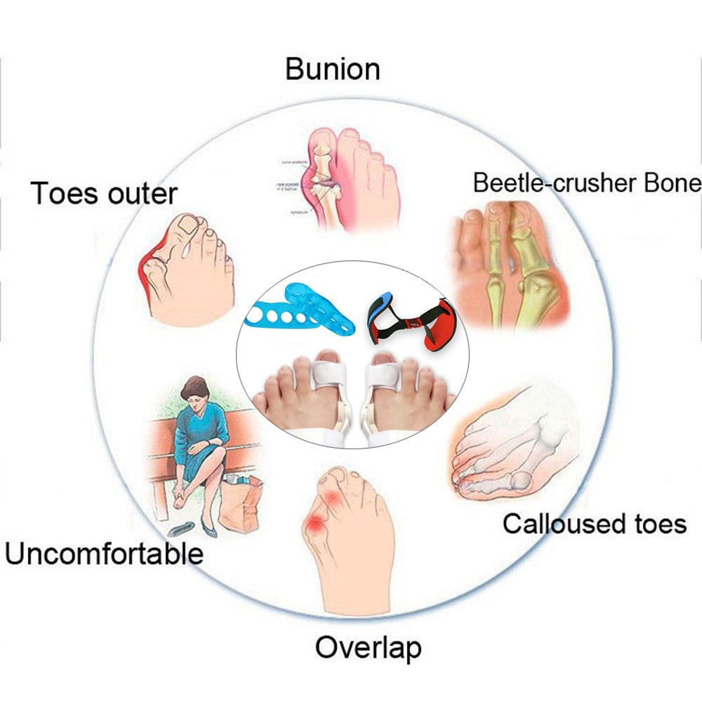 Bunion Corrector and Bunion Splint Care Kit for Bunion Relief, Hallux Valgus Corrector, Big Toe Straightener,Joint Protector Brace, Bunion Pads Toe Separators Spacers Surgery Aid Night Men and Women by H-Brotaco
