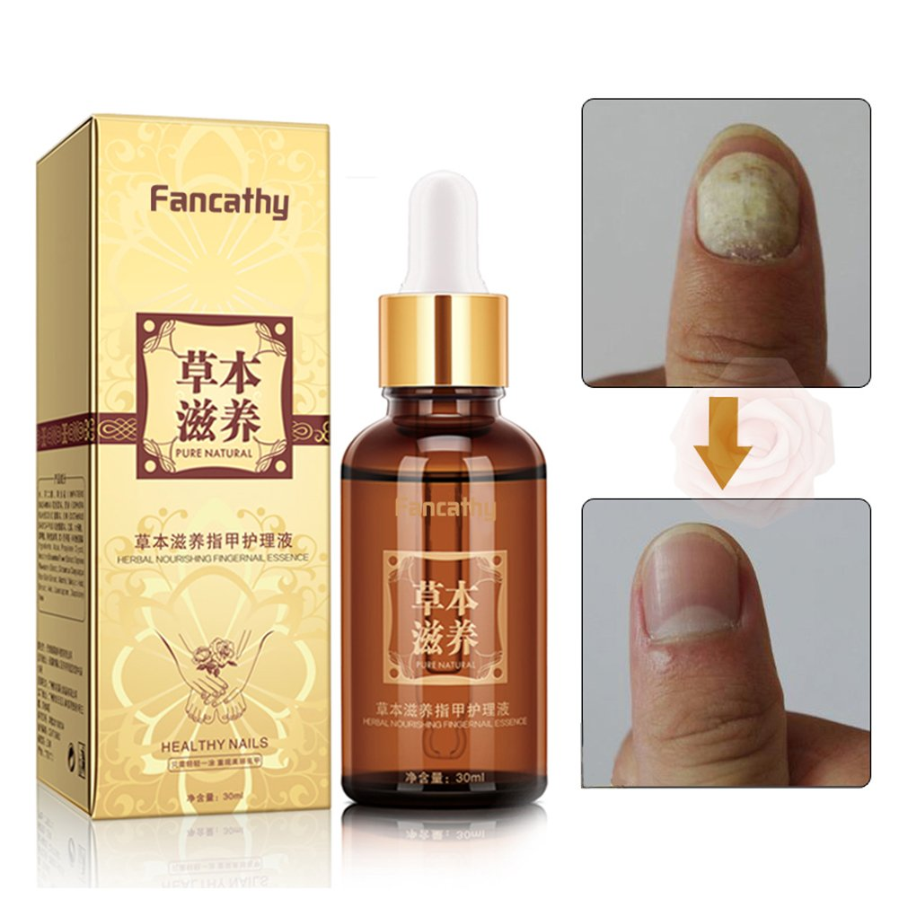 Nail Fungus Oil Nail Care,Nail Fungus Treatments,Nail Care Treatment of Anti-Fungal Solution,Suitable for Fingers and Toe Healthy Nails,Effective against nail fungus 30ml by Fancathy (Image #5)