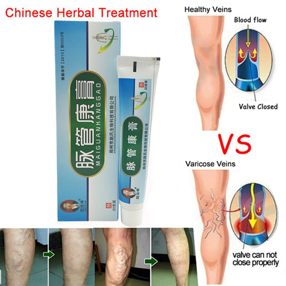 ointment for varicose veins