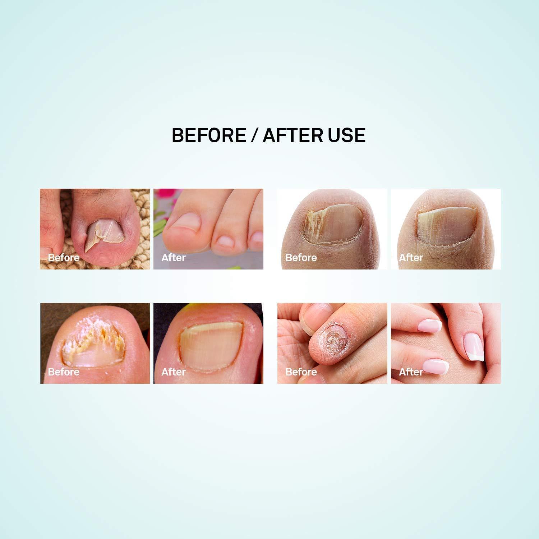 Amazon.com: Puriderma Anti-Fungal Nail Repair Pen 2 Pcs- Fast ...
