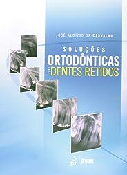 Soluções Ortodônticas Para Dentes Retidos