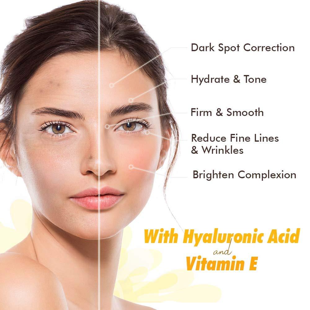 Ebanel 10% Vitamin C Serum for Face, Korean Skin Care Face Serum, Liposomal  Vitamin C Skin