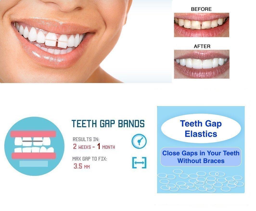 Wish And Box Orthodontic Elastic Gap Teeth Bands Amazon In