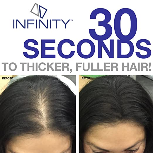 Infinity Hair Fiber - Hair Loss Concealer - Hair Thickening Fiber for Men & Women - Medium Brown, 28g