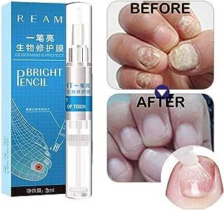 Yiiay Tratamiento de uñas Fungos, Tratamiento de uñas de alta calidad, blanqueador de uñas, dedo y dedo del pie Fungus Tratamiento de uñas con Argan & - Árbol de té aceite y