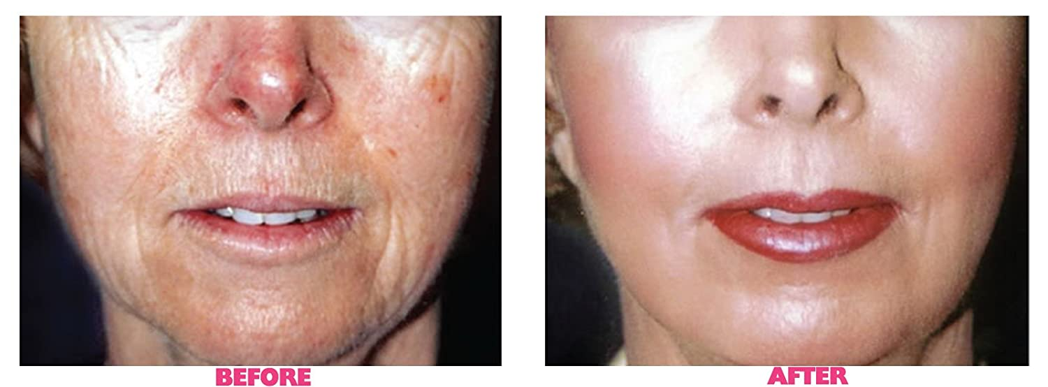 Gel from wrinkles Kuriozin: reviews of cosmetologists, features of use and composition 31
