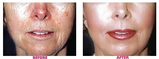 50% Glycolic Chemical Peel Sheer Vivid Tinted Moisturizer SPF 20 - # T4 Ramla ILIA Beauty 1.9 oz Moisturizer For Women