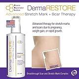 PRI Dermarestore - The #1 Clinically Proven Stretch Mark and Scar Treatment - 4oz Cream