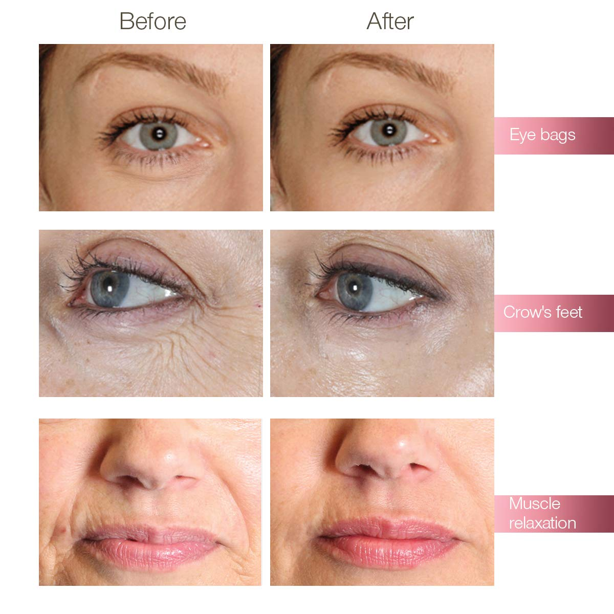 Hyaluron Injection Pen, Hyaluronic Acid Moisturizer, Deep Replenishment And  Rich Nourishment, Helps