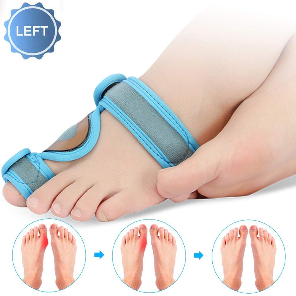 CXDM Big Bones Hallux Valgus Orthosis Pain Relief Overlapping Toe,Effective and Comfortable Correction Splint Bunion Corrector,Left by CXDM