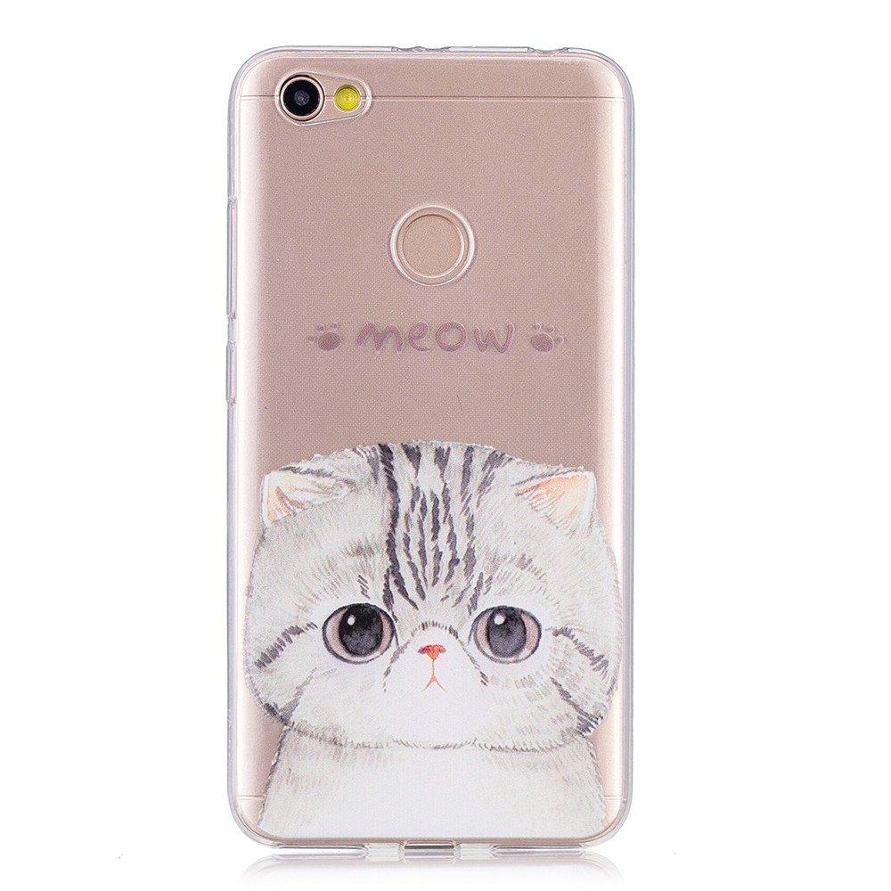 Xiaomi Redmi Note 5a Phone Case Protective Design Cell Anti Crack No Fingerprint Basicstock Skins Tough Slim Light Cover For