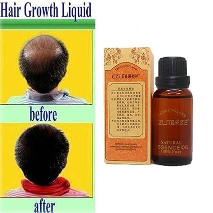 gstone 1pieza pérdida de pelo natural 1pieza productos con sin efectos secundarios crecer pelo más rápido