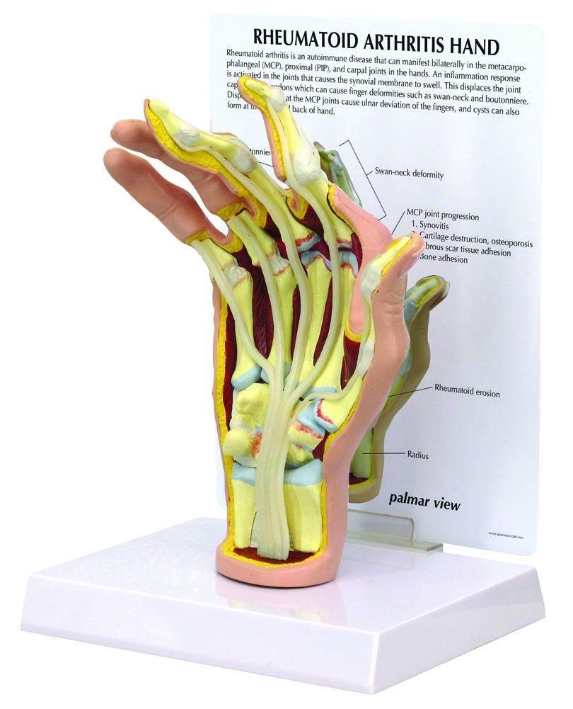 Amazon.com: Hand Rheumatoid Arthritis (RA) Anatomical Model ...