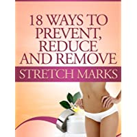18 Ways to Prevent, Reduce and Remove Stretch Marks