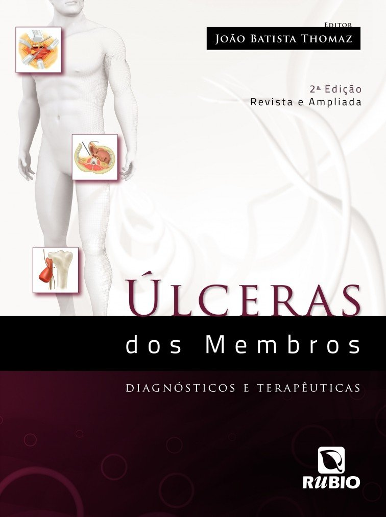 Read Online Úlceras dos Membros. Diagnósticos e Terapêuticas PDF