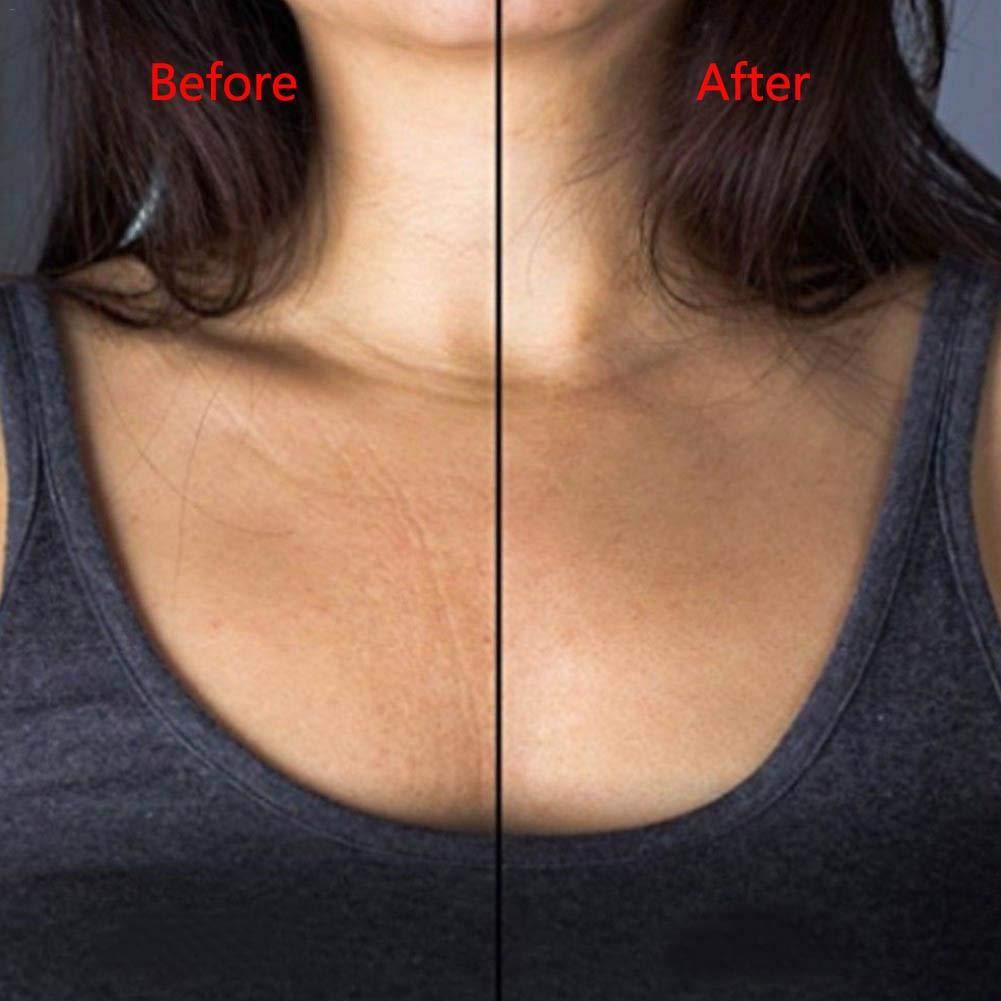 Colinsa Parche antiarrugas de silicona para el escote, transparente, forma de corazón, para eliminar y evitar las arrugas: Amazon.es: Belleza
