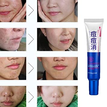 Sorry, removing facial blemishes remarkable