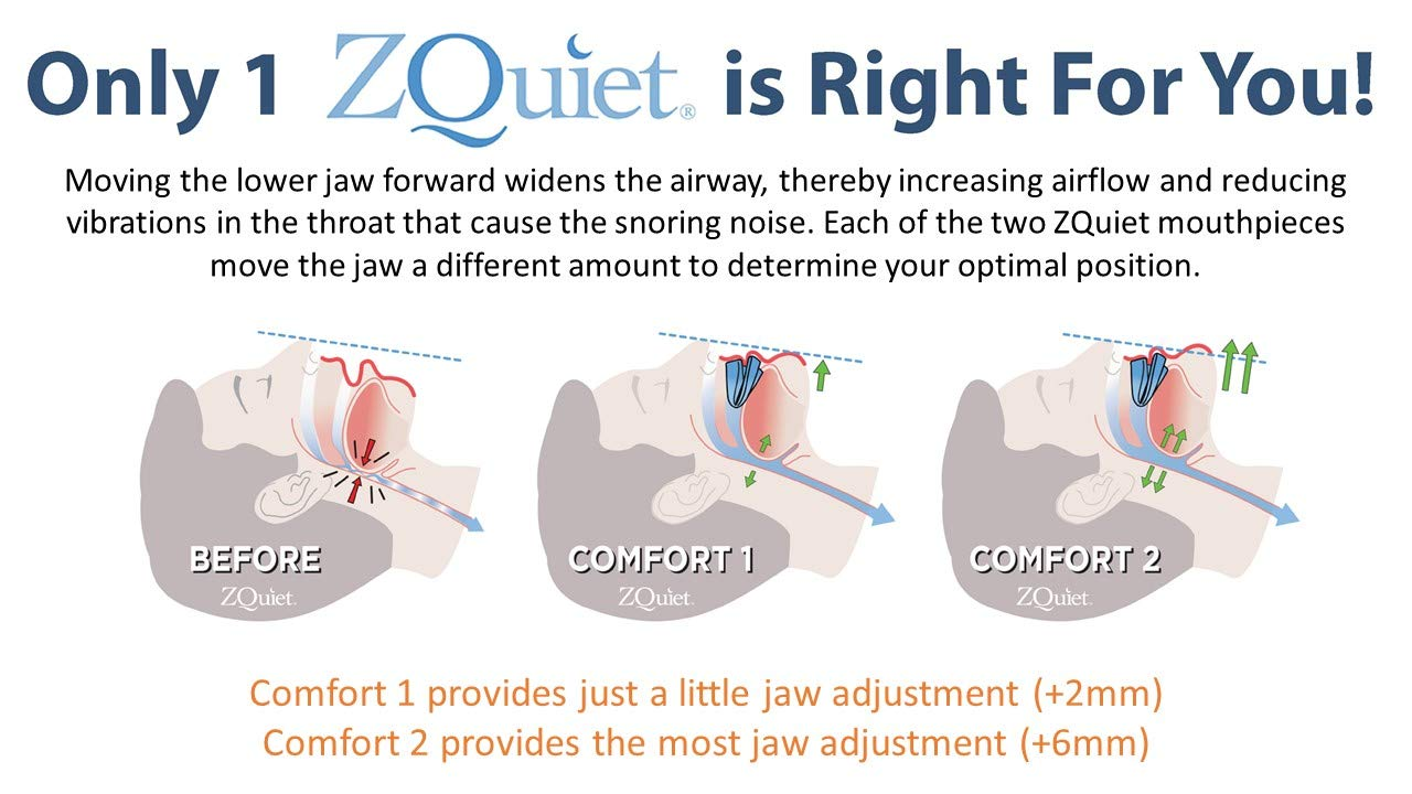 ZQuiet Anti-Snoring Treatment, 2-Size Comfort System Starter Kit, Set of 2 Sleep Aid Mouthpieces Plus Travel Case by ZQuiet (Image #6)