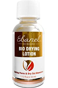 Ebanel Acne Spot Treatment Drying Lotion, Overnight Salicylic Acid and Sulfur Cystic Acne Treatment for Teens and Adults, Acne Lotion Dries Out Pimples, Cysts, Blemishes, Zits, and Clogged Pores