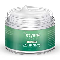 Scar Removal Cream Advanced Treatment for Old & New Scars from Cuts Stretch Marks...