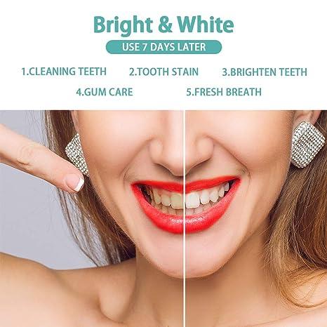Amazon.com: GOOSDA - Lápiz de gel blanqueador dental ...