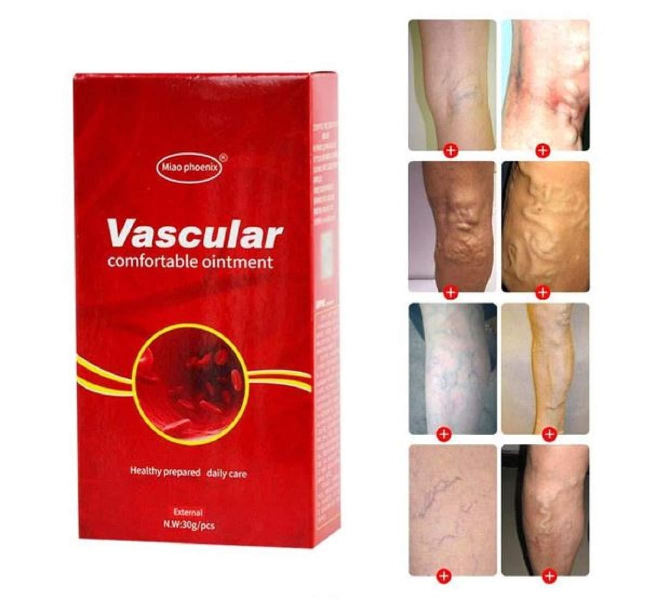 după operație varicoasă piciorul este posibil să lucrați cu vene varicoase